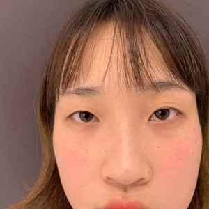 福州上睑下垂双眼皮综合手术