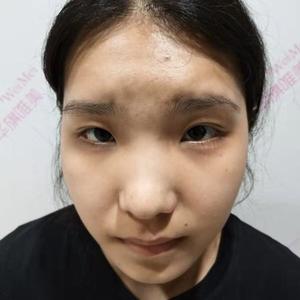 异体骨隆鼻