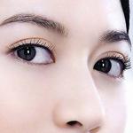 埋线双眼皮多久恢复自然?