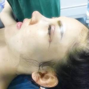悦Mer_5927419820华悦府肋骨隆鼻术后1天第3页图