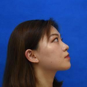 玻尿酸填充鼻子