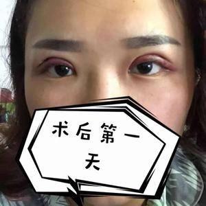案例贴—为什么做完双眼皮后眼睛睁不开