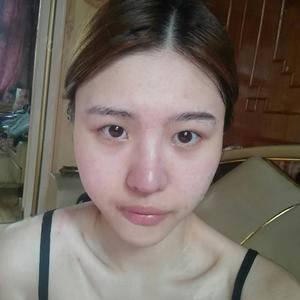 双眼皮+开眼角,韩式精雕,自然,灵动