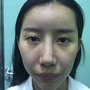 少女脸提升术