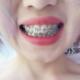 刚戴上的时候,还是有些不舒服,稍微有些酸痛感,第七天牙齿不怎么疼了,就是咬东西还不是很灵活。四个月的...