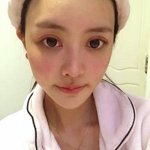 一个双眼皮手术拯救全脸