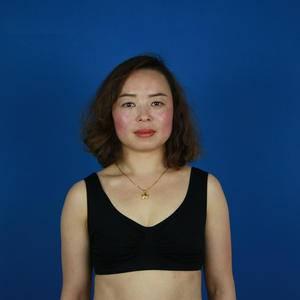 假体隆胸 与多年的小平胸说拜拜
