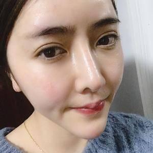 悦Mer_2301146506荣荣的鼻综合术后135天第1页图