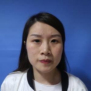 福州 鼻综合 隆鼻 鼻翼缩小