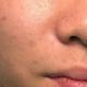 身为男人,哪个没有痘痘问题造成的坑疤在脸上!年轻的时候,我叫这个是男人味,感觉很Man,可以把自己塑造...