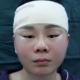 手术刚结束那会可以感觉到脸有点肿,整个脸颊会有往上提拉的感觉,现在提拉感还在,感觉做完提升之后脸上...