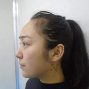 郑州元素美学整形鼻综合眼综合
