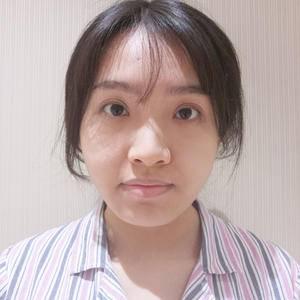 美贝尔 鼻综合