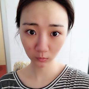 假体隆鼻部