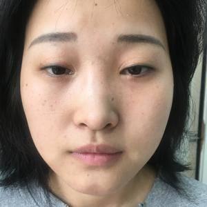 假体隆鼻/硅胶隆鼻/丰下巴