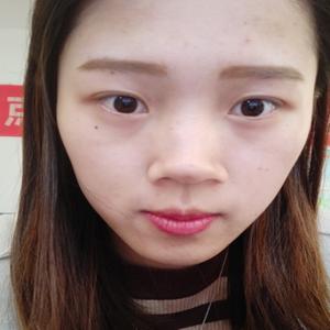 福州爱美尔硅胶隆鼻 鼻综合 持续更新