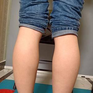 【吸脂瘦副乳+吸脂瘦小腿】