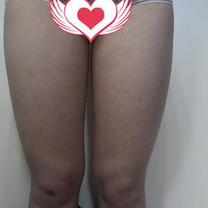 文艺女青年的大腿吸脂日记