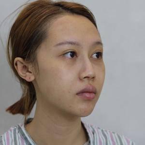 膨体隆鼻+耳软骨垫鼻尖+驼峰矫正