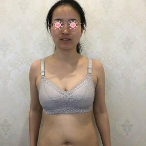 美贝尔  吸脂瘦腹部