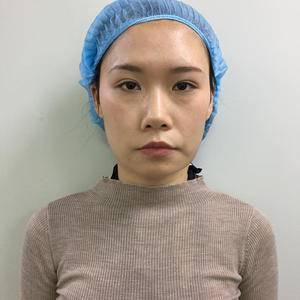 少女脸线雕 重塑轮廓 逆龄提拉