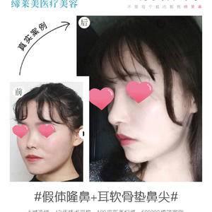 假体隆鼻+耳软骨垫鼻尖