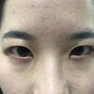 双眼皮+开眼角 眼综合日记