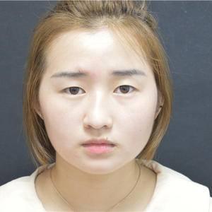 在杭州东方医院做埋线双眼皮