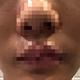 5月14号和面诊医生高医生及注射医生张利民沟通后决定左右脸两侧各注射50单位的肉毒素,一共100单位。医生说...