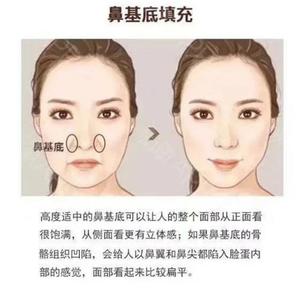 鼻基底凹陷怎么填充才不显老?