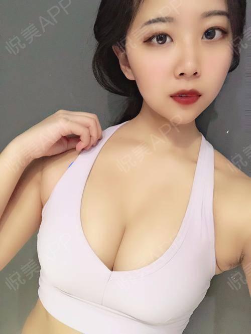 【南京美贝尔整形医院-假体隆胸】一直都是给大家发的照片,今天就给大家发个之前拍的视频吧比较真实一些,也是我术后刚好3个月...