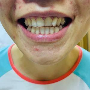 隐形矫正牙齿姚