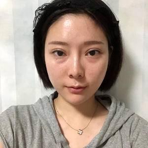 维多利亚眼部综合手术,双眼皮修复