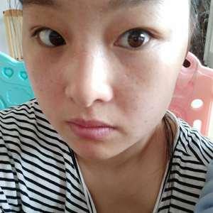 深圳健丽不开刀去眼袋、双眼皮