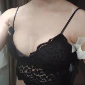 假体隆胸术前