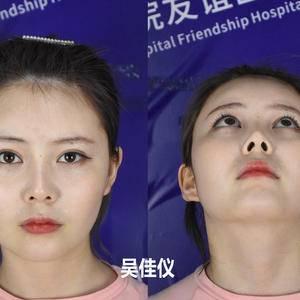 小一一来做下颌角手术啦