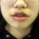 拆线那天拍的照片,唇部看起来还是肿肿的,有些翘,我做了唇综合项目,嘴角上扬做了内切~内切效果自然一些...