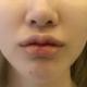 今天去医院拆线啦,唇部褪了一层皮,下唇是那种小性感的感觉,上唇唇形我还是比较满意的,就是现在还太肿了...