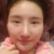 上海喜美做半肋鼻综合第8天,早上去拆的线,住院的时候看着里面的小姑娘肿胀的蛮厉害的,我一直都还挺好,...