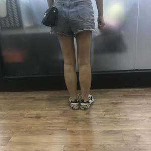 腿部吸脂术